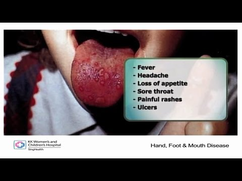 ​Hand Foot and Mouth Disease (HFMD)