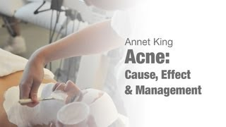 Acne, Cause, Effect and Management