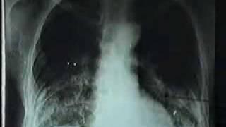 Video hình ảnh Kê bụi phổi trên phim XQuang