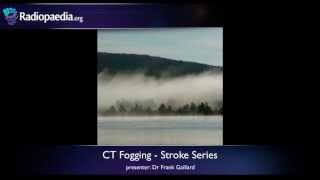 Stroke: Fogging Phenomenon On CT - Radiology Video Tutorial