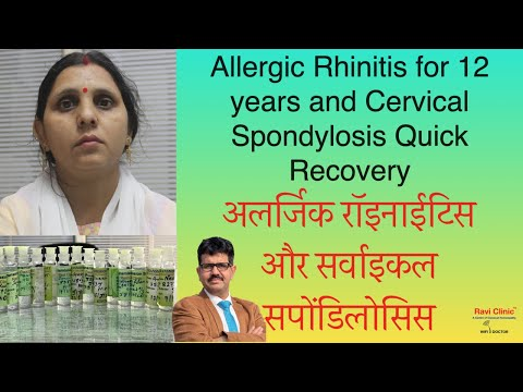 Allergic Rhinitis for 12 years and Cervical Spondylosis Quick Recovery Dr.Ravi Singh