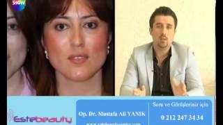 Op Dr Mustafa Ali Yanık Alın Germe Dolgu ve Botoks Uygulamaları hakkında bilgi veriyor