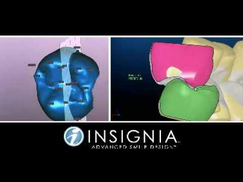 Insignia (kişiye özel sistem)