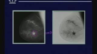 Lecture - 17 Image Enhancement