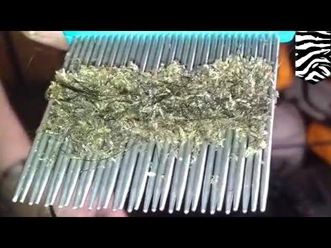 Kasus kutu rambut terburuk: terekam dalam sebuah video menjijikan - TomoNews