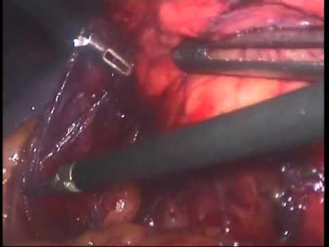 Диета после операции киста копчика