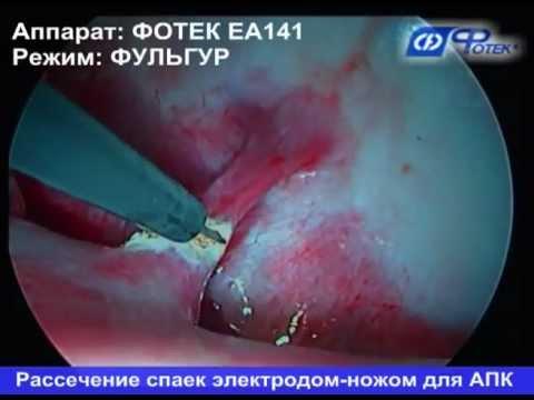 Хирургическое лечение туберкулеза легких