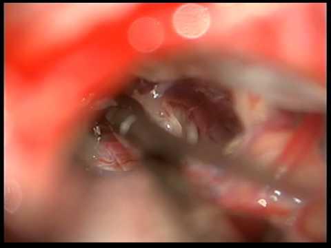 Микроваскулярная декомпрессия тройничного нерва