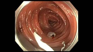 Video Colonoscopy: Colon Polyp with Cancer - which one needs surgery after EMR MP3, 3GP, MP4, WEBM, AVI, FLV Februari 2019