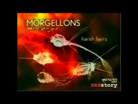 Morgellons Diesease How to remove fungus