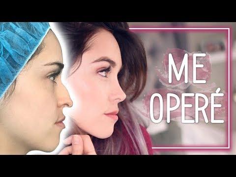 GRABARON MI CÍRUGIA - Me Operé  #Storytime I Kika Nieto (видео)