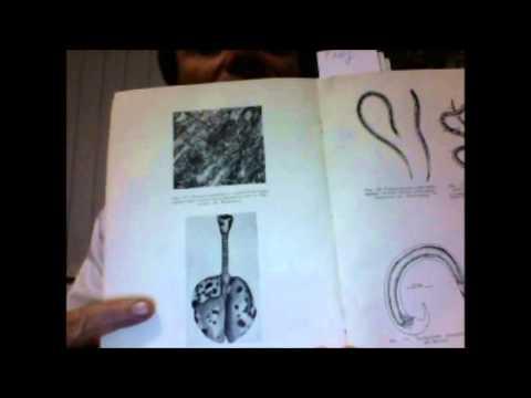 Как удалить глисты, паразитов? Глисты, паразиты, гельминты на фото! Как избавиться от паразитов?