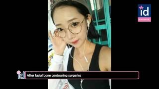 Korean Jawline and Cheekbone Reduction Surgery (Korea Plastic Surgery Before and After)
