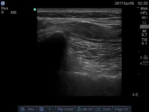 Ultrasound guided sacroiliac joint injection.
