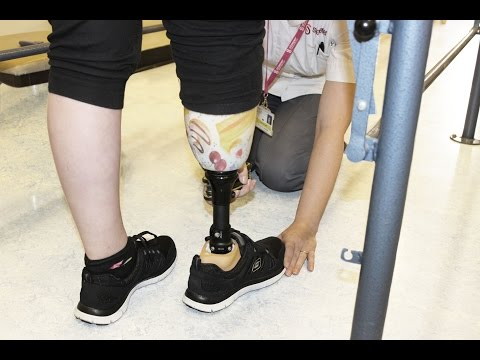 How Hannah's prosthetic leg created a turning point in her life