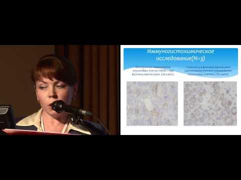 Фолликулярный рак щитовидной железы у детей. Современный взгляд на проблему