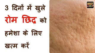 """खुले रोम छिद्र को हमेशा के लिए खत्म करें  Get Rid of Large Pores सिर्फ 3 दिनों में खुले रोम छिद्र को हमेशा के लिए खत्म करें  Get Rid of Large Pores चेहरे के रोम छिद्र को 3 दिन में हमेशा हमेशा के लिए खत्म करें  get rid of large skin pores Forever chehre ke rom chidra band karne ke upay close open pores permanentlyhow to get smooth skin,how to get glowing skin at home,how to get fair skin at home,get even skin tone,beauty tips,skin care tips,best home remedies,Indian Youtuber, open pores,large pores,home remedy,face mask to close open pores,home remedy to get rid of open pores,चेहरे के छिद्रों को दूर करें,How to shrink open large pores,how to close open pores permanently, open pores home remedy,open pores on face,open pores treatment,open pores on nose,smooth skin,how to remove open pores,how to get smooth skin,how to get clear skin,clear skin,clear skin routine,clear skin overnightopen pores,How to Get Rid of Large Pores,Home Remedy for Open/Large Pores,खुले रोम छिद्र से कैसे छुटकारा पाये,चेहरे के रोम छिद्र को हमेशा हमेशा के लिए खत्म करें..जानिए कैसे..?,चेहरे के गड्ढे को कैसे कम करें,how to cure open pores,chidra ke upay,Large Pores,Face mask to close open pores,चेहरे के छिद्रों को दूर करें,How to get rid of open pores,Shrink Large Pores, open pores,large pores,home remedy,face mask to close open pores,home remedy to get rid of open pores,Open Pores / large Pores Home Remedy,Get smooth younger u0026 Flawless skin in 3 days,चेहरे के छिद्रों को दूर करें,How to shrink open large pores,Pore tightening face mask/home remedy,How to get rid of open pores/Large pores,Homemade face mask for open and large pores,how to close open pores permanentlyThank you for watching & Please Subscribe My channel for more videos-~-~~-~~~-~~-~-Please watch: """"Right time to drink Milk  ढूध पीने का सही समय"""" https://www.youtube.com/watch?v=-rP-qlpUkLA-~-~~-~~~-~~-~-"""