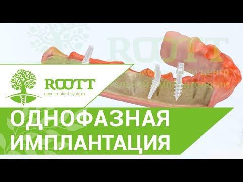 Однофазная (базальная) имплантация, нижняя челюсть. ROOTT. Видео однофазной (базальной) имплантации.