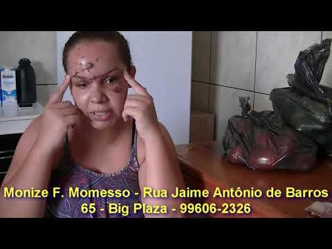 EXCLUSIVO -Jalesense (Monize) conta como foi o acidente em que ela se vitimou, e recebe doações de Rondonópolis e Palmeira d'Oeste.