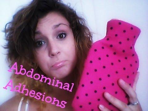 Abdominal Adhesions - Ostomy Problems - Jasmine's Journey