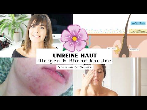 🌸 AKNE BEKÄMPFEN / unreine Haut Mitesser - Gesichtspflege Routine Jucepauline GESUND & SCHÖN