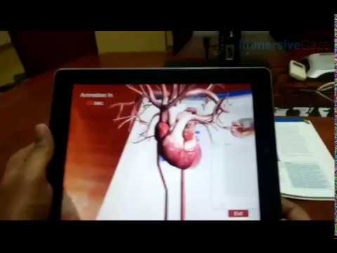Impact of Augmented Reality in Medical Education