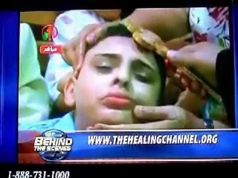 Blind Muslim Boy gets healed in JESUS name - (Live Miracle healing video)