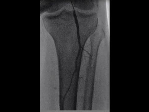 Баллонная ангиопластика артерий нижних конечностей