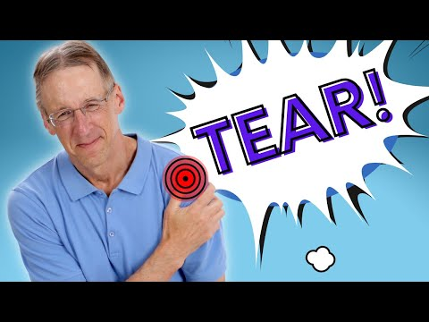 Top 3 Signs Of A Rotator Cuff Tear