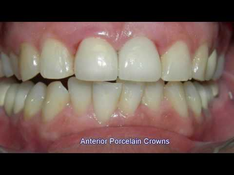 Los Angeles Porcelain Crowns