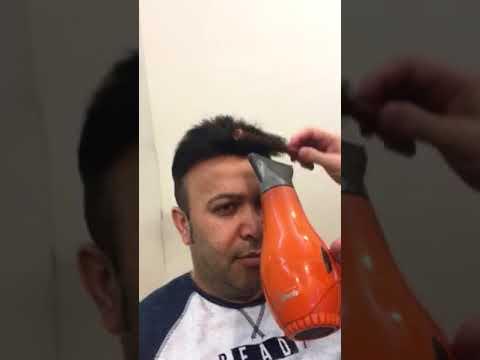 Protez Saç Sonrası