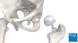 How a hip replacement is carried out