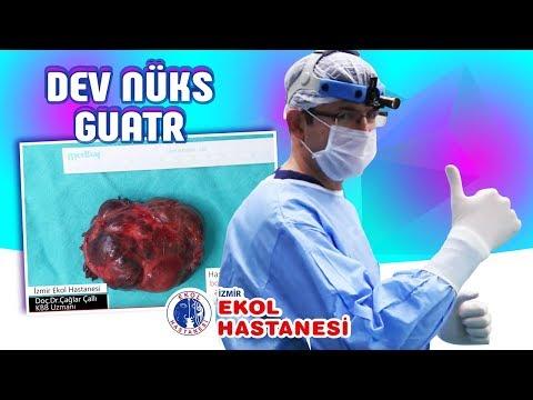 Dev Nüks Guatr - Doç. Dr. Çağlar Çallı - İzmir Ekol Hastanesi