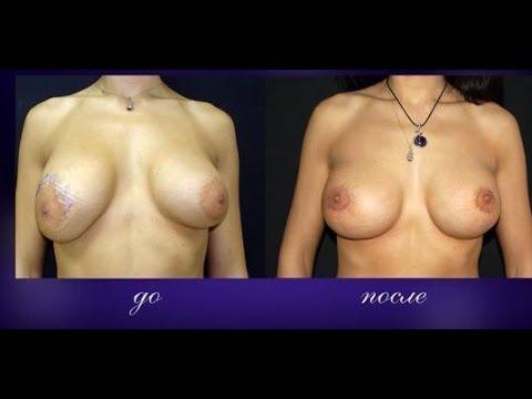 Плёнка для подтяжки груди