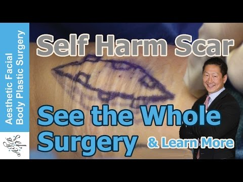 Self Harm Scars - See The Wound Double in Size & Learn About the Whole Surgery #scar #plasticsurgery