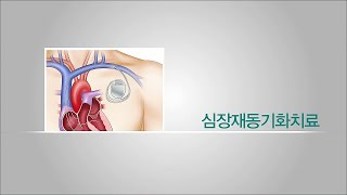 심장재동기화치료 미리보기