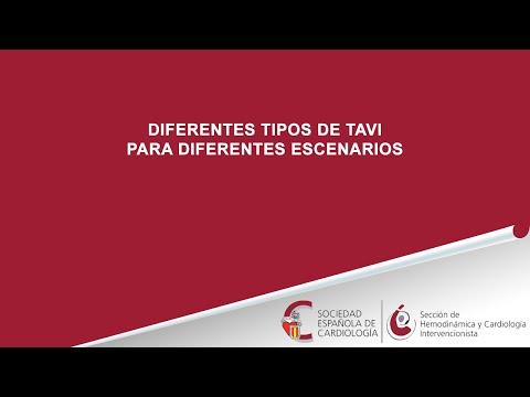 Controversias en el ámbito de las prótesis aórticas percutáneas