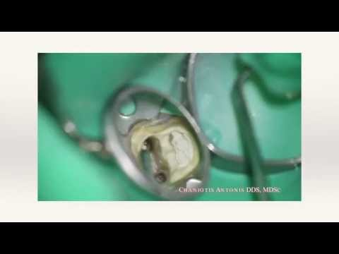 Broken endodontic instruments removal