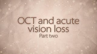 OCT and acute vision loss: part 2