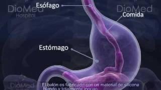 Cirugía de Balón Intragástrico