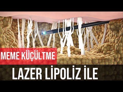 Meme Küçültme Ameliyati [ Lazer Liposuction ile ]_A plasztikai sebészet kulisszatitkai. A legmodernebb eljárások, és orvosi hibák. Szilikon völgy