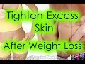 How to Tighten Excess Skin After Weight Loss