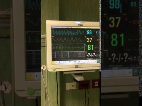 Monitoreo contínuo de paciente con TV fascicular posterior. Dr. Ángel Pérez Urrutia