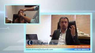 Op. Dr. Mustafa Ali Yanık burun estetik ameliyatları ne kadar sürer?