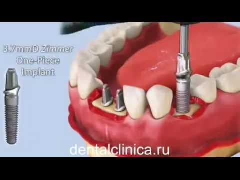 Лечение зубов красивая улыбка коронки протезирование импланты СГС Швейцария с абатмантом