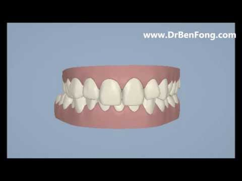 Invisalign Results for Neda A.  Before & After   www.invisalignresults.ca
