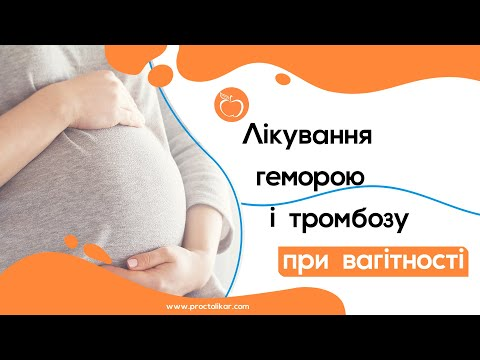 Лікування геморою і тромбозу при вагітності