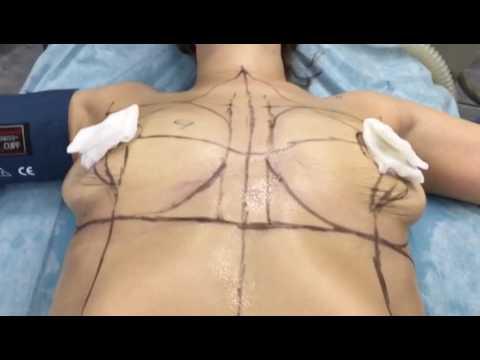 Вертикальная подтяжка груди на имплантах