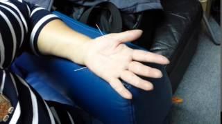 患者本來有「腰突」病史,今次因為做家務意外扭傷了腰及右肩,手不能後伸,腰不能彎。
