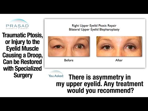 Traumatic Ptosis (Drooping Eyelid From Injury) Can Be Repaired By An Oculoplastic Surgeon